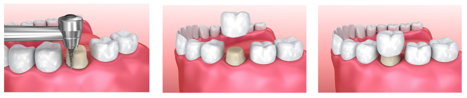 Dental Crowns Procedure Infographic